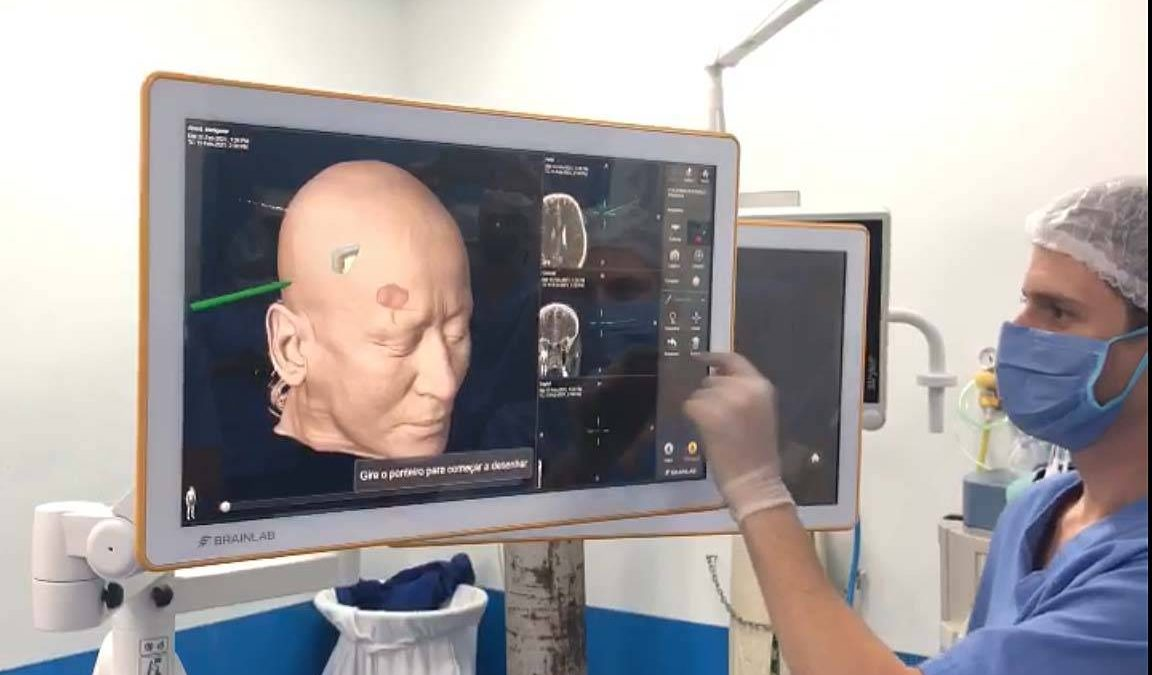 Hospital do Trabalhador realiza neurocirurgia com equipamento inédito no País